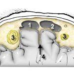 Аплазия правой фронтальной пазухи