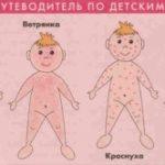 Сколько дней держится температура при ветрянке у ребенка 3 лет