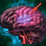 Сужение сосудов головного мозга у ребенка лечение