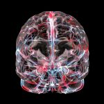 Мр ангиография сосудов головного мозга без контраста