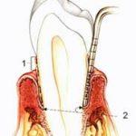 Лечение пародонтита лечение гингивита лечение пародонтоза