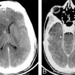 Вторичный серозные менингоэнцефалиты