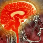 Исследования при менингоэнцефалите
