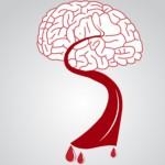 Что за болезнь склероз сосудов мозга