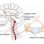 Гипоплазия правой позвоночной артерии лечение пиявками