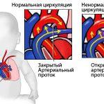 Гипоплазия легочной артерии у новорожденного отзывы